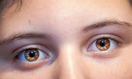 La enfermedad que ocultan sus ojos